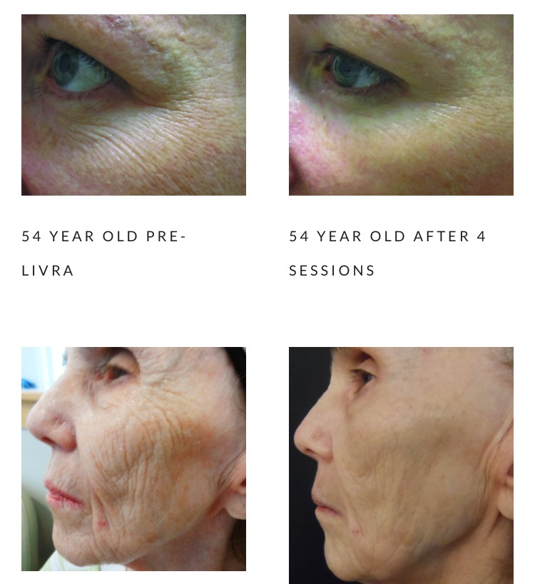 Microneedling $50 off your first treatment